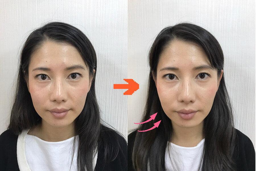 美容鍼ビフォーアフター